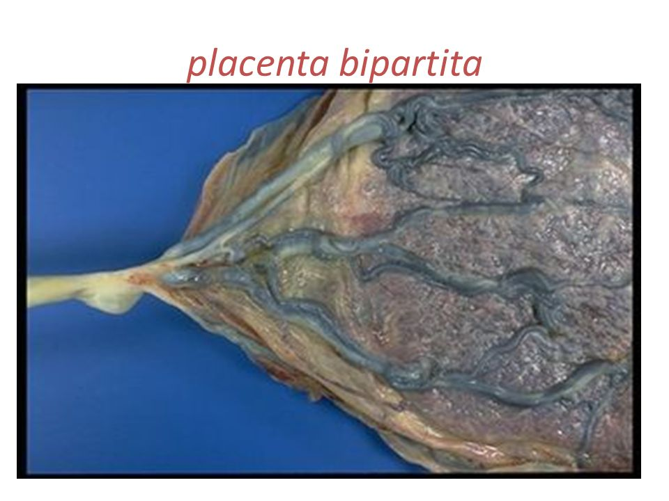 placenta bipartita