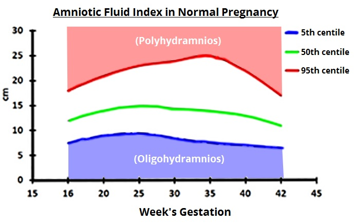 Fig 1 - Amniotic fluid centiles during pregnancy. Polyhydramnios is over the 95th centile, oligohydramnios is below the 5th centile